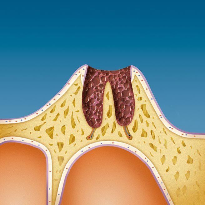 Резултат от загуба на зъб - дълбоки рани във венеца. Протефикс